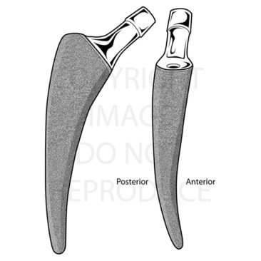 Part of a collection illustrating different hip replacement stems. <i>Adobe Illustrator and Photoshop